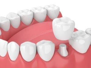 dental crowns in las vegas, nevada